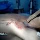 Hombre con un cuchillo clavao casi  le lleban su pene el diablo que problema