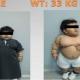 Someten a un niño de dos años a una cirugía para bajar de peso