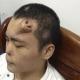 VIDEO El diablo miren esto Cirujanos chinos cultivan una nariz en la frente de un paciente