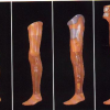 VIDEO Un proyecto de prótesis de pierna totalmente robótica con movilidad de rodilla y tobillo.