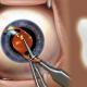 VIDEO Un diente en el ojo: Una extraña operación ayuda a un ciego a recuperar la visión