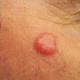 ENTERATE Lo Mejor para cancer en la piel es esto miren : Vitamin D Linked to Skin Cancer