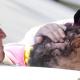 Fotos: El emotivo abrazo del papa Francisco a un hombre con deformaciones en la piel