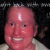 VIDEO Mujer con una rara enfermedad en la piel enfrentó el 'bullying' con un mensaje sencillo