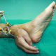 Doctores salvan la mano de un hombre en China al implantarla en una de sus piernas