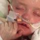 Darán medicina experimental a un niño de 7 años para intentar salvarlo