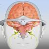 ¿Sufres de migrañas? Un dispositivo que se usa en la cabeza puede prevenirlas