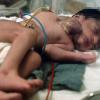 Bebé indio nacido con el corazón fuera del tórax deja estupefacto a los médicos