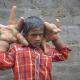 VIDEO Miren esta enfermedad increible Rare Medical Condition Gives Indian Boy Gigantic Hands