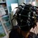 Estudio: La estimulación eléctrica del cerebro podría ayudar a salir de una depresión grave
