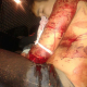 Video Fuerte Hombre fue atacado a machetazo Man with Machete Wound all Over the Body