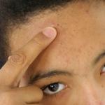 """""""Su impacto potencial será enorme"""": Desarrollan en EE.UU. una 'vacuna' contra el acné"""